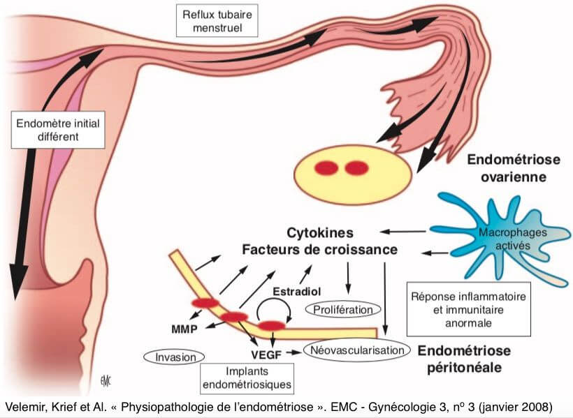 Physiopathologie de l'endométriose